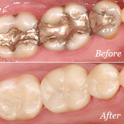 Dental Crowns in Mill Creek, WA